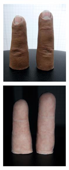 Implante prótesis avanzada de dedo índice y medio * MG
