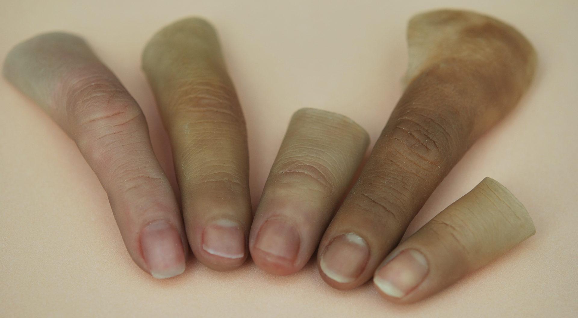 """<span  class=""""uc_style_uc_tiles_grid_image_elementor_uc_items_attribute_title"""" style=""""color:#ffffff;"""">Prótesis dedos Medellín * MG  Las prótesis de dedos Avanzadas MG, Son increíbles obras de arte, totalmente realistas. No se distinguen de los dedos reales. Hechos a medida exacta, incluso con el color, tono, textura, pliegues, huellas, idénticos a los del paciente.  Son dispositivos de óptima apariencia, calidad y durabilidad.  Elaborados con los principales componentes: tecnológicos, ortopédicos, anatómicos y cosméticos.  La tecnología patentada MG, logra compensar la deficiencia ortopédica. También, reproduce la anatomía y cosmética real del paciente. Imitando a la perfección los dedos perdidos por causa de lesiones o traumáticas o  congénitas.  La técnica para reconstrucción protésica del dedo, emula los de la mano opuesta. Las prótesis MG, tendrán toda la información de la persona; la morfología, huellas digitales, tamaño, color de uña, lunares y venas, etc.  Todo se puede hacer, en parte a un estrecho contacto directo con el cliente a lo largo del proceso de fabricación.  Las prótesis para dedos MG se adaptan a cualquier nivel de pérdida, especialmente para amputaciones parciales, con presencia de una falange residual o muñón del dedo. Para los casos más complejos o de desmembramientos debe preguntar al especialista MG, por las alternativas existentes para usted.  En todos los casos se garantiza que el dedo MG queda perfectamente sujetado al muñón o falange residual. Gracias al SOM-G * Soquet Ortopédico MG. Se pueden poner o quitar en segundos, encajan perfectamente. Los dedos MG no requieren pegamento, ni vendajes para la colocación diaria.</span>"""