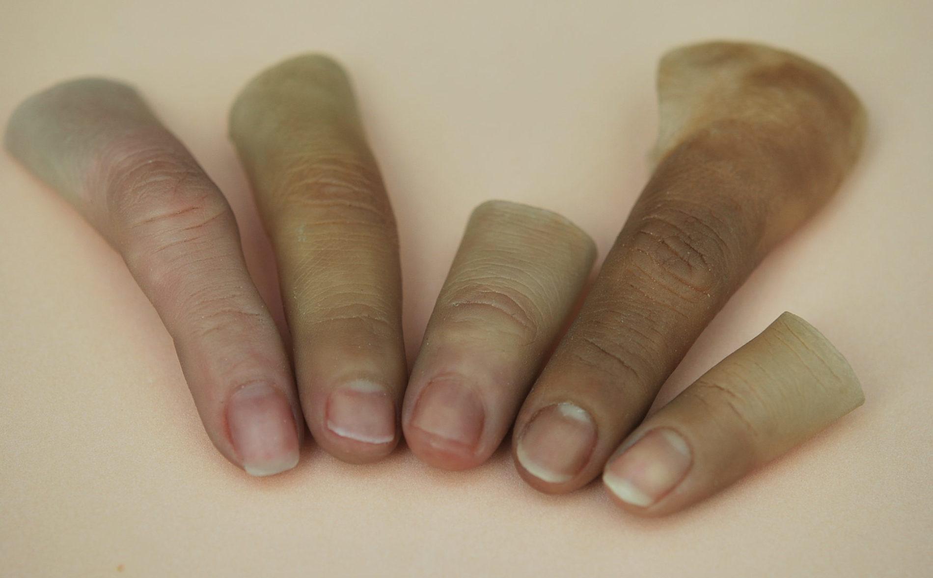 Prótesis restauración artificial de dedos amputados * MG