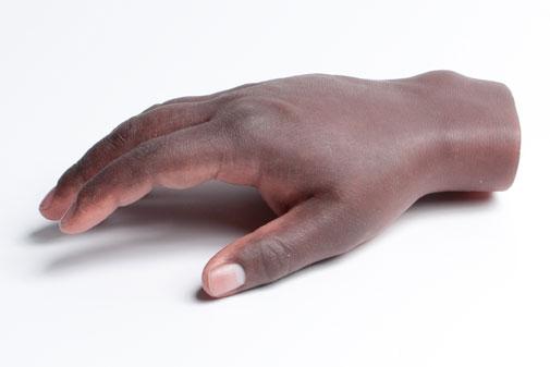 Prótesis dedo y mano * Medellín