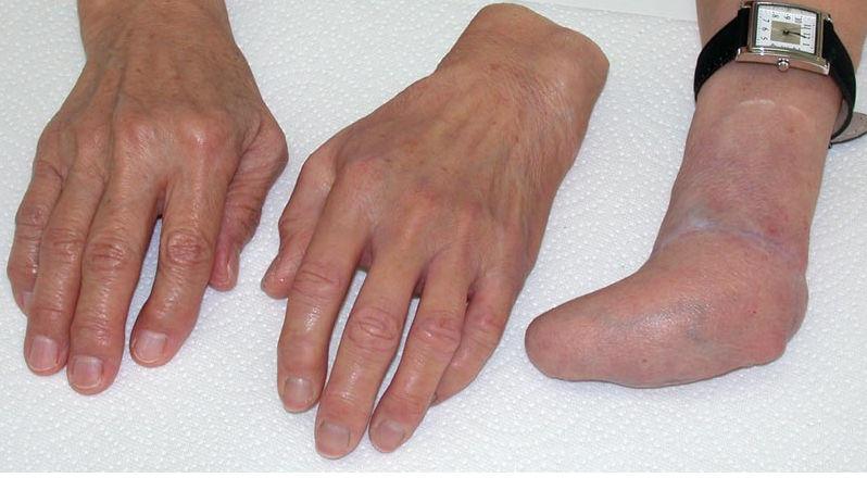 Prótesis avanzadas, para manos amputadas