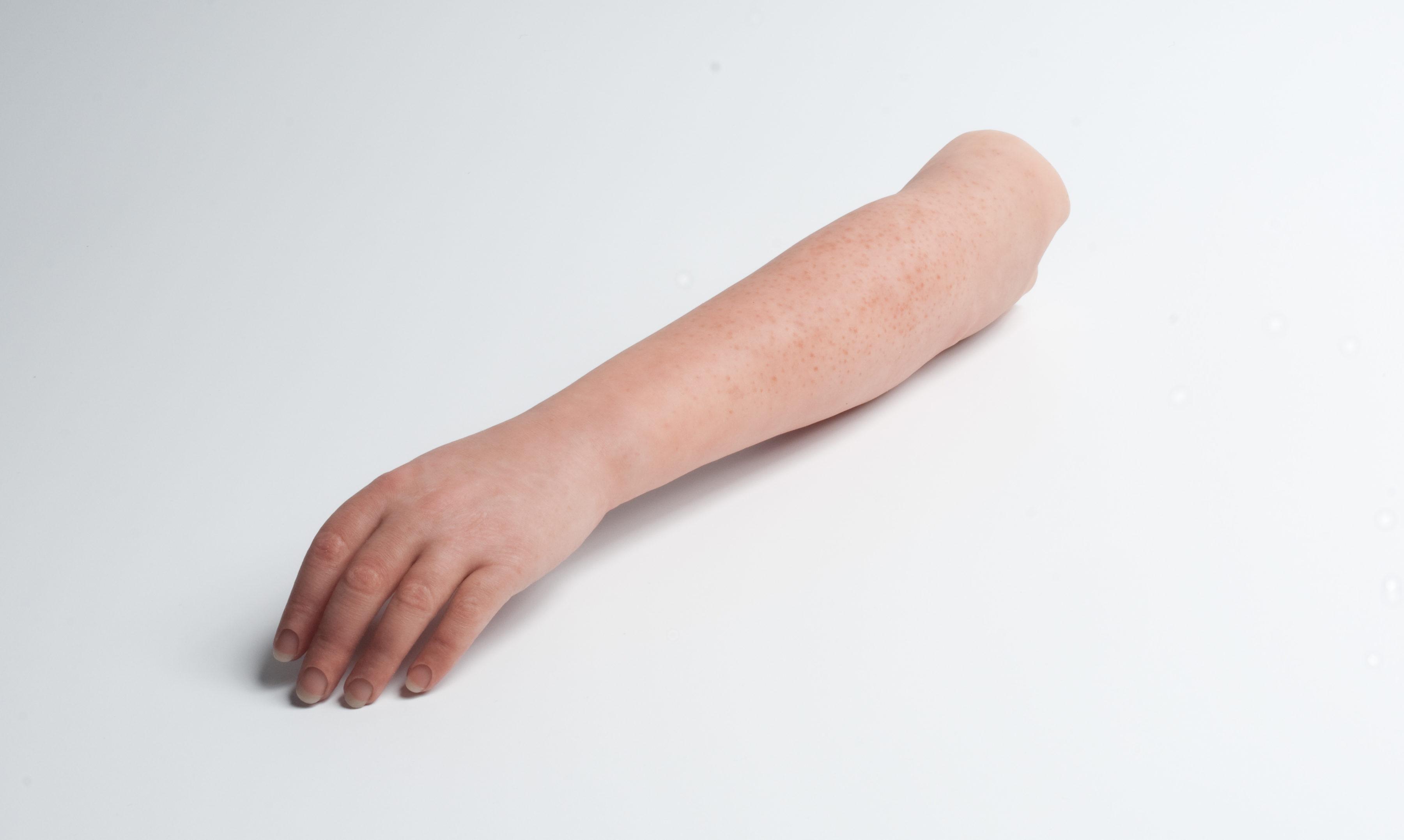 Prótesis para brazos