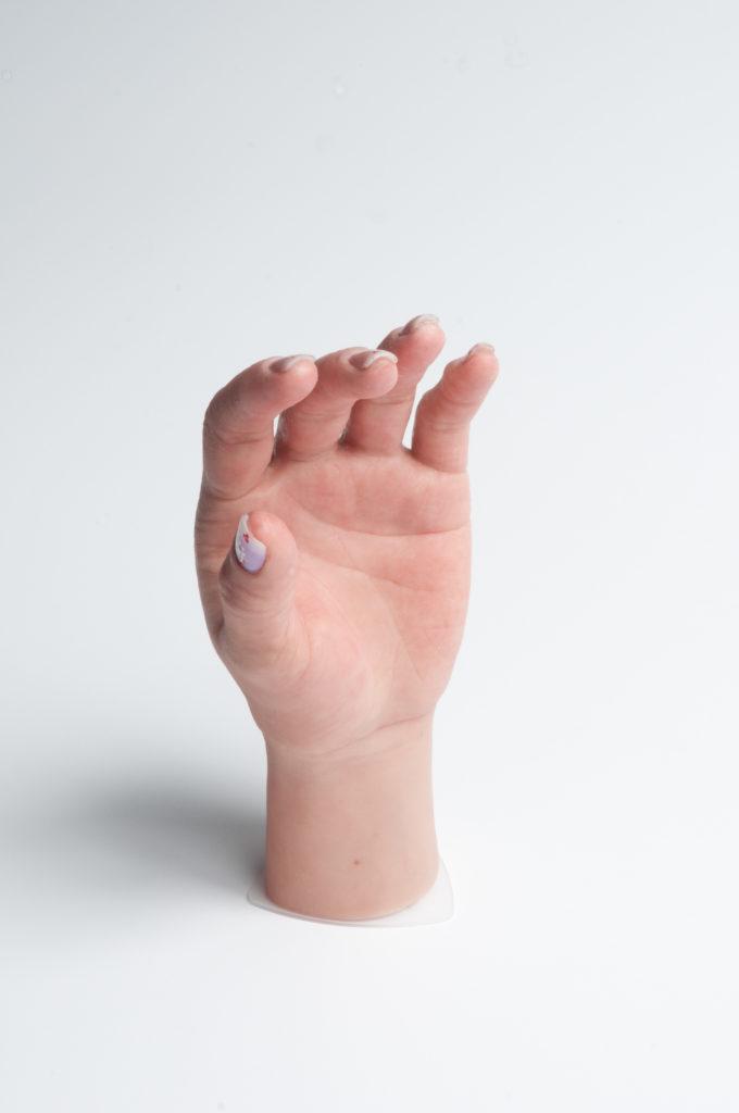 Prótesis Para Mano De Mujer