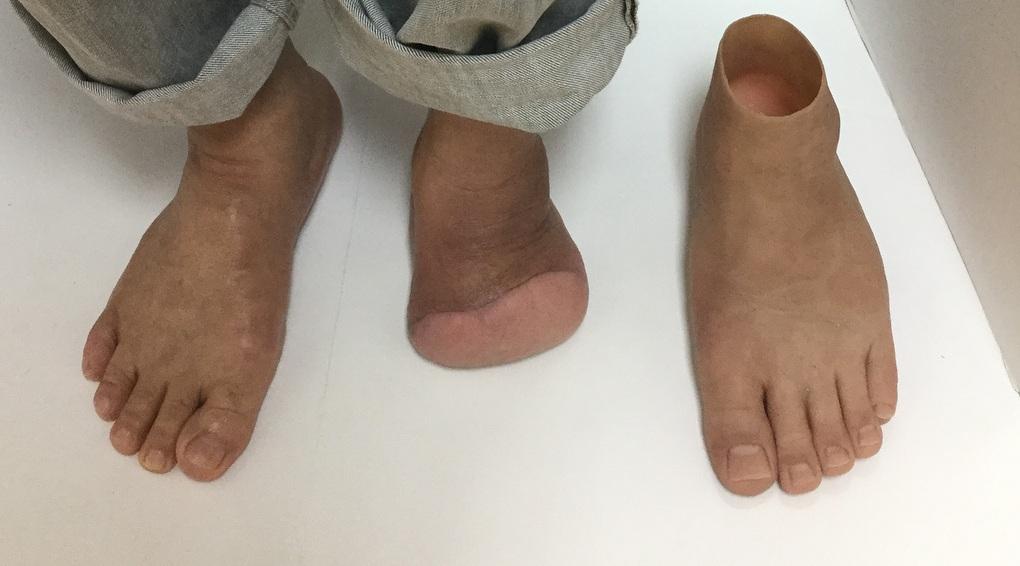 Amputación transmetatarsiana * Prótesis MG