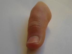 """<span  class=""""uc_style_uc_tiles_grid_image_elementor_uc_items_attribute_title"""" style=""""color:#ffffff;"""">Implante dedo pulgar * Prótesis MG  La técnica para reconstrucción protésica del dedo, emula los de la mano opuesta. Las prótesis MG, tendrán toda la información de la persona; la morfología, huellas digitales, tamaño, color de uña, lunares y venas, etc.  Todo se puede hacer, en parte a un estrecho contacto directo con el cliente a lo largo del proceso de fabricación.  Las prótesis para dedos MG se adaptan a cualquier nivel de pérdida, especialmente para amputaciones parciales, con presencia de una falange residual o muñón del dedo. Para los casos más complejos o de desmembramientos debe preguntar al especialista MG, por las alternativas existentes para usted.</span>"""
