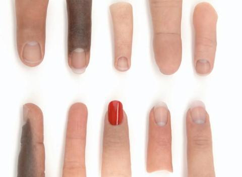 Prótesis de dedo manos y pies * MG