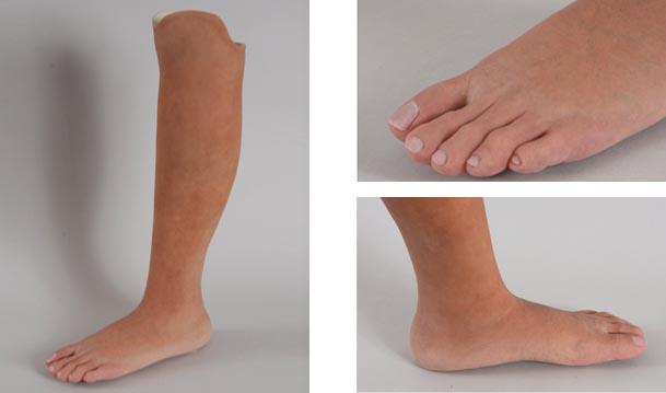 Prótesis MG para pie
