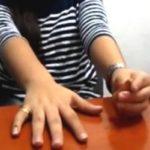 Prótesis quinto dedo mujer Guayaquil Ecuador * MG