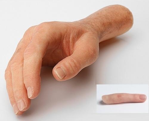 Prótesis de mano y dedo * Diplomado anaplastología