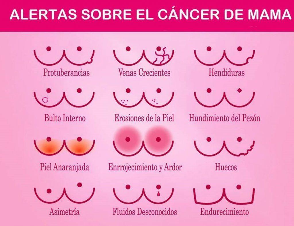 Alertas cáncer mama * Prótesis MG