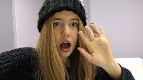 Son importantes las prótesis avanzadas para dedos * MG Latam