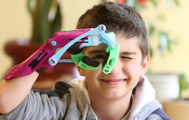Prótesis Hechas Con Impresoras 3D
