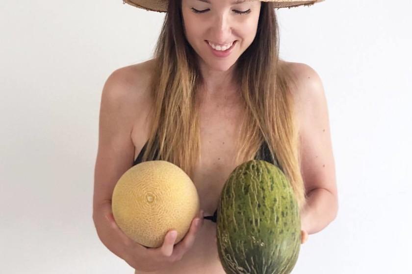 Asimetría mamas * Prótesis MG