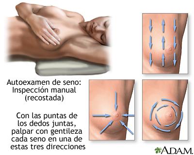 Autoexamen mamas * Prótesis MG
