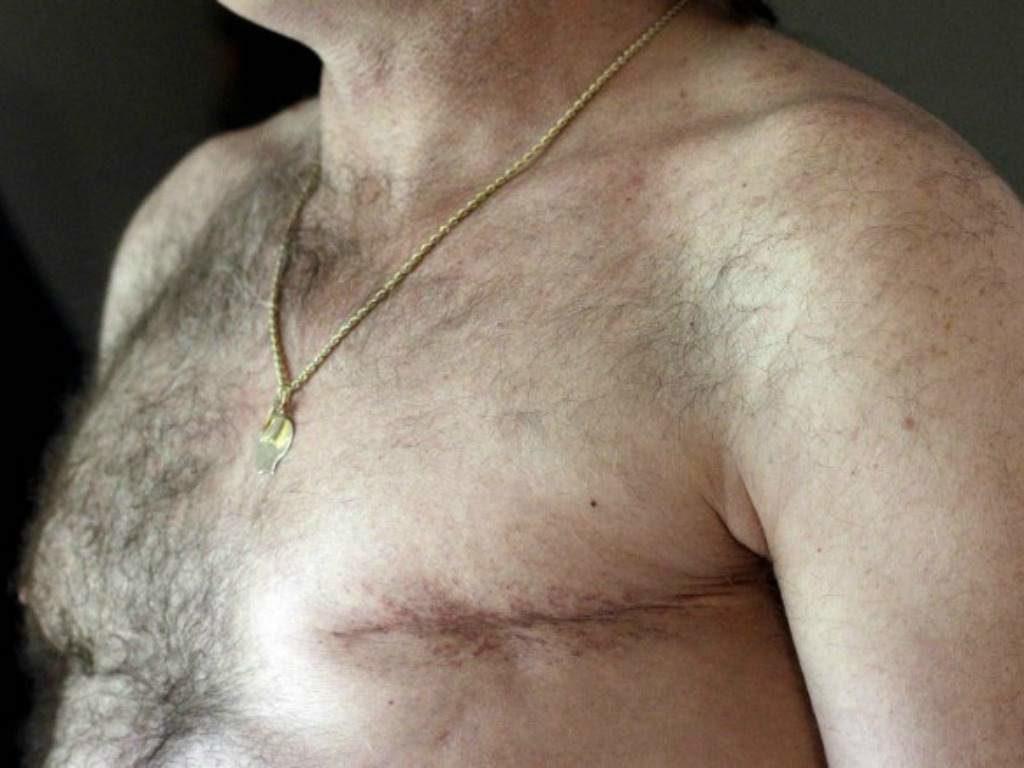 Mastectomía hombre * Prótesis MG