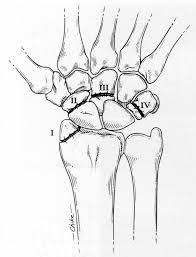 Prótesis MG * Amputación metacarpiana
