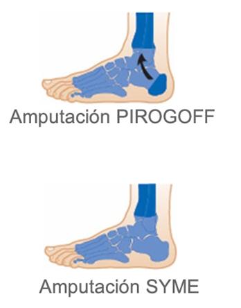 Desarticulación del tobillo (Syme, Pyrogoff)