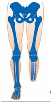 Amputación debajo de la rodilla (transtibial)