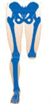 Amputación en la rodilla (desarticulación de la rodilla)