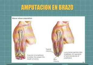Prótesis MG * Amputación arriba del codo (transhumeral)