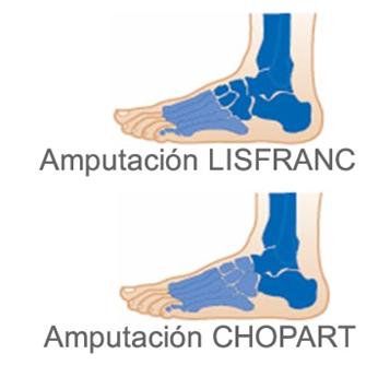 Amputación parcial de pie (Chopart, Lisfranc)