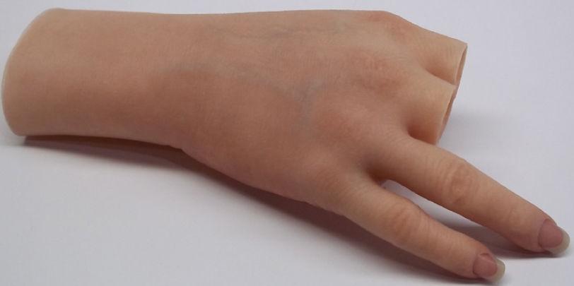 Prótesis mano parcial anaplastología * MG