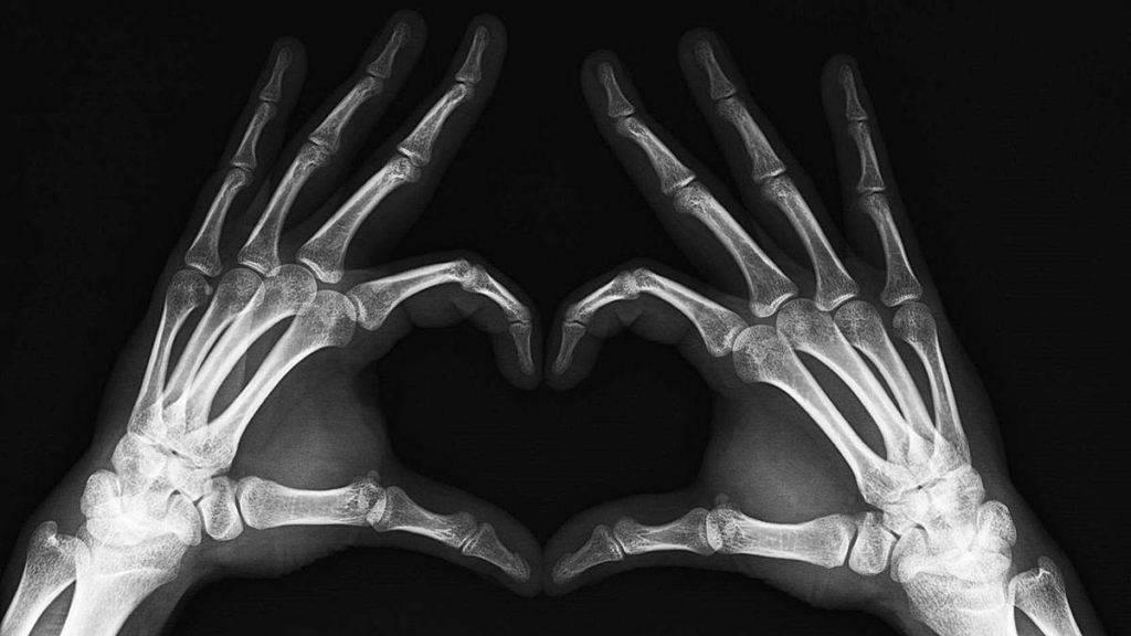 Prótesis MG LATAM * Anatomía de la mano