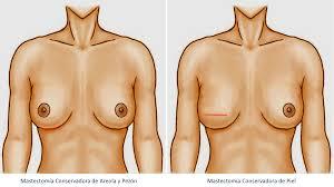 Prótesis MG LATAM * Mastectomía conservadora piel