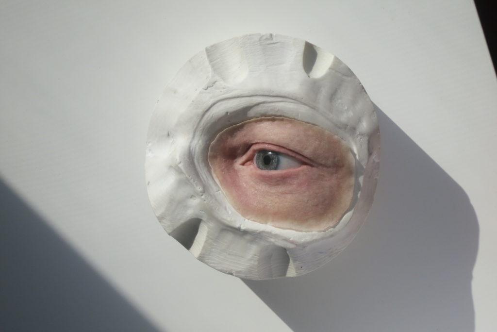 Prótesis ojo anaplastología * MG