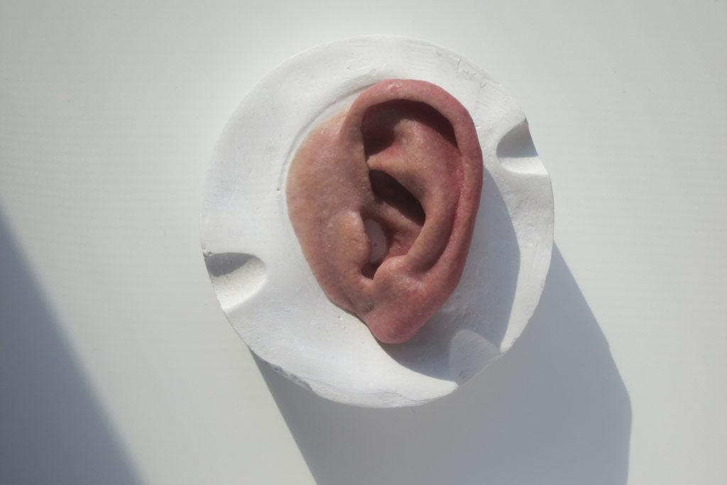 Prótesis oreja anaplastología * MG