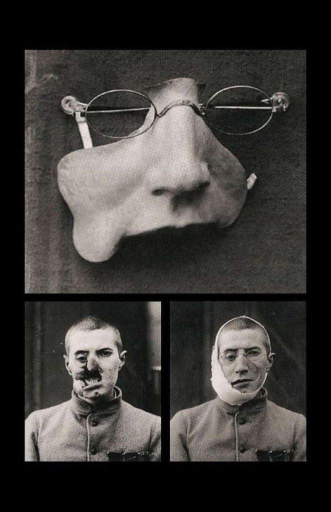 Prótesis facial * MG