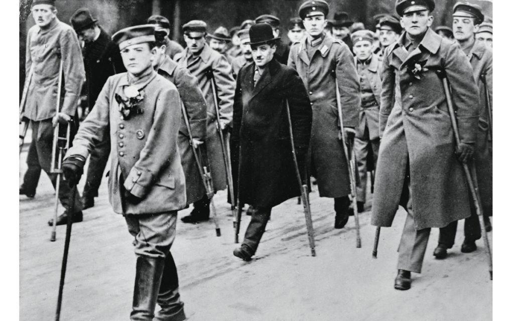 Amputados primera guerra mundial * Prótesis MG