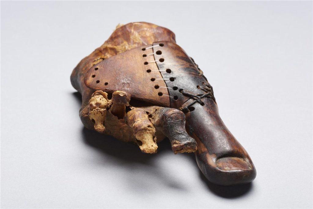 Prótesis egipcia * MG