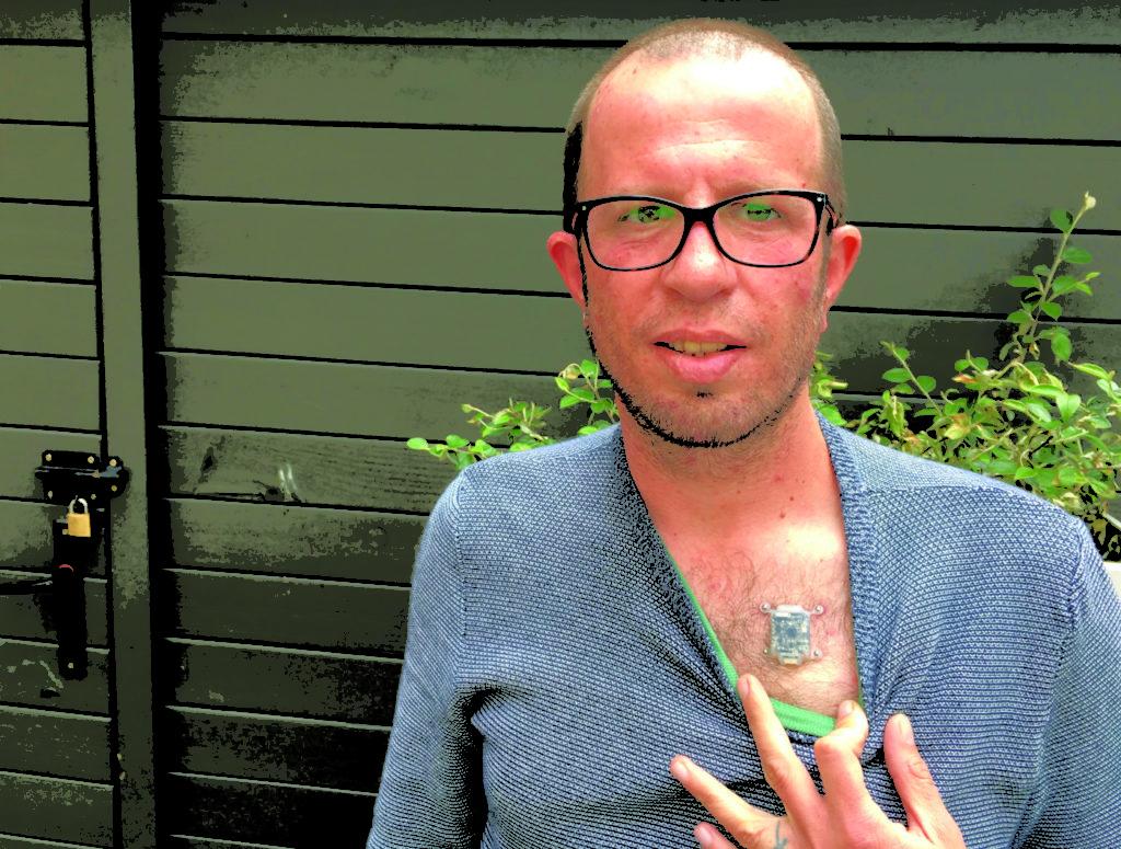 Liviu Babitz implante pecho