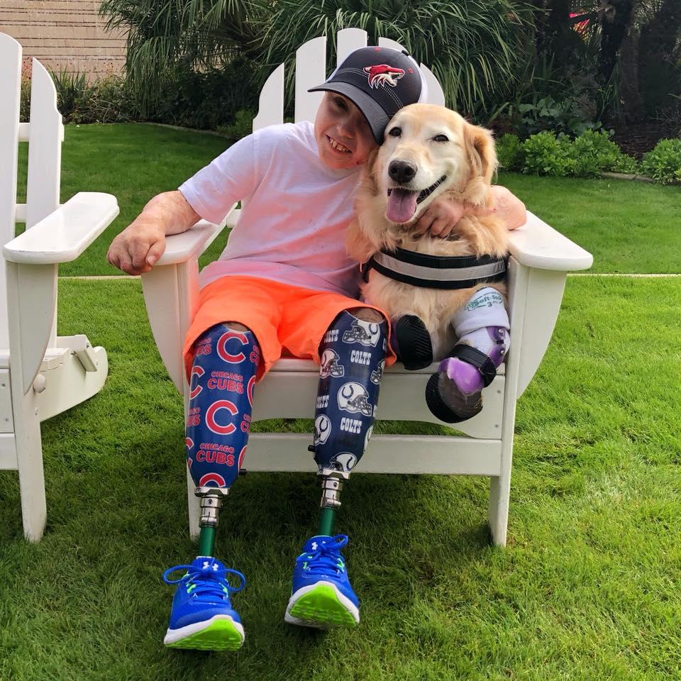 Niño Con Amputación Bilateral De Sus Piernas Conoce A La Perra Chi Chi