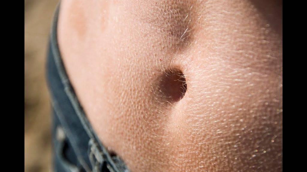 Piel abdomen