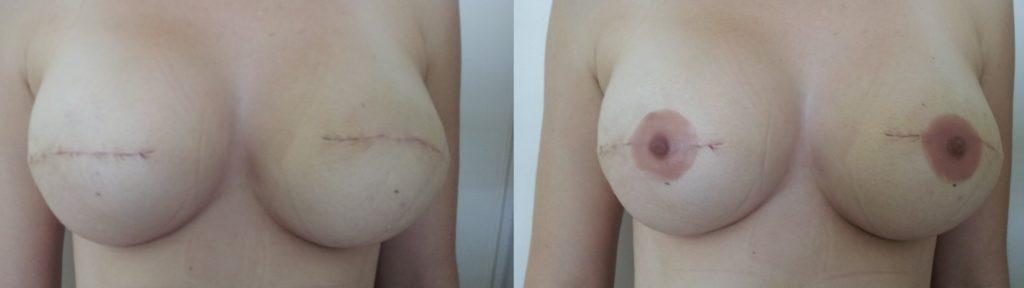Prótesis pezón bilateral