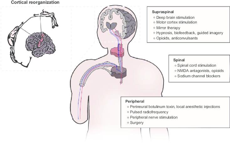 Reorganización cortical