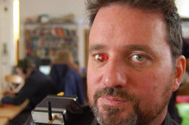 Rob Spence prótesis ojo