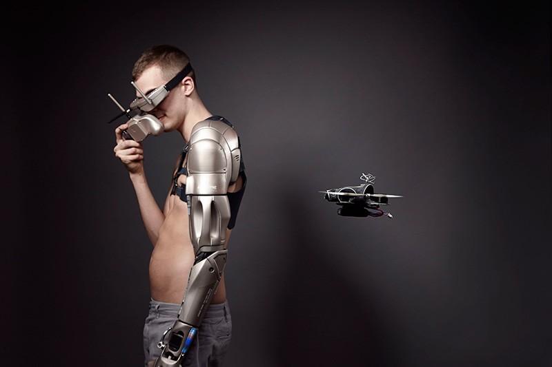 Prótesis robotica futuro