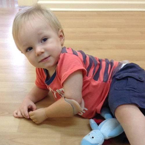 Prótesis para bebé