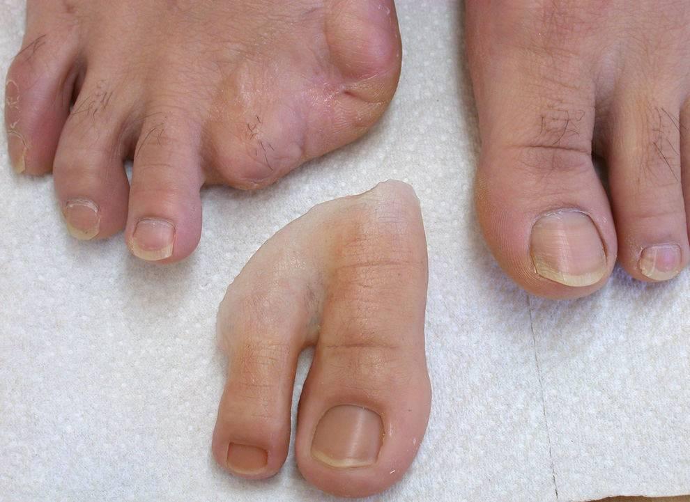 Prótesis para amputación del dedo gordo del pie