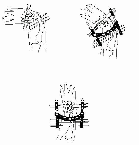 Técnica quirúrgica mano zamba