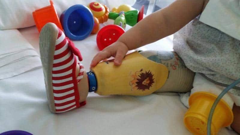 Bebé con prótesis de pierna