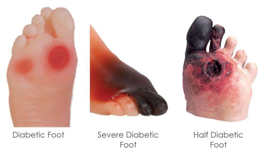 Tipos de ulceras