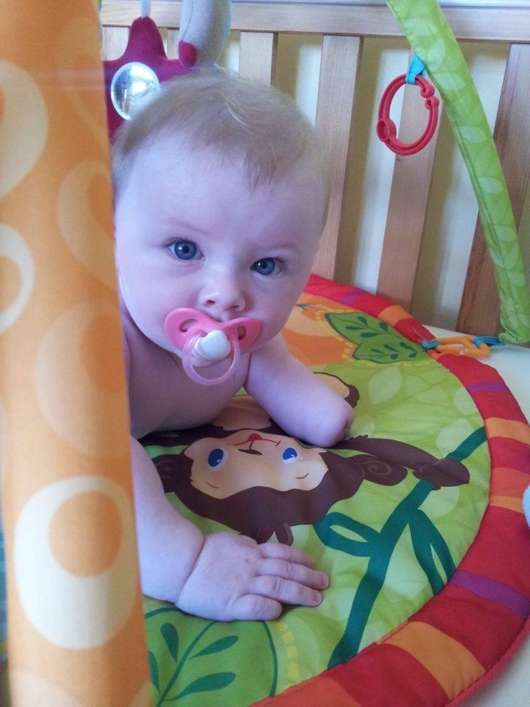 Bebé con agenesia