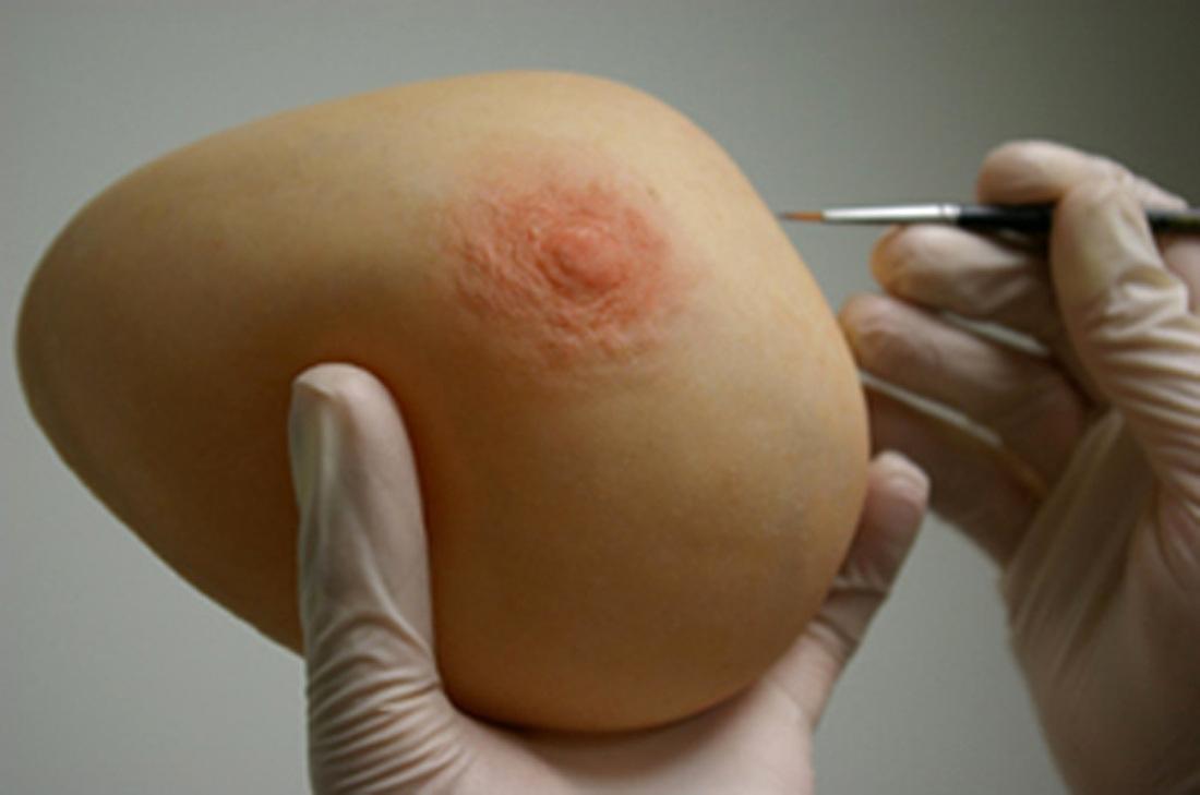 Prótesis De Mamas externas  MG LATAM |  Post quirúrgicas * Avanzadas