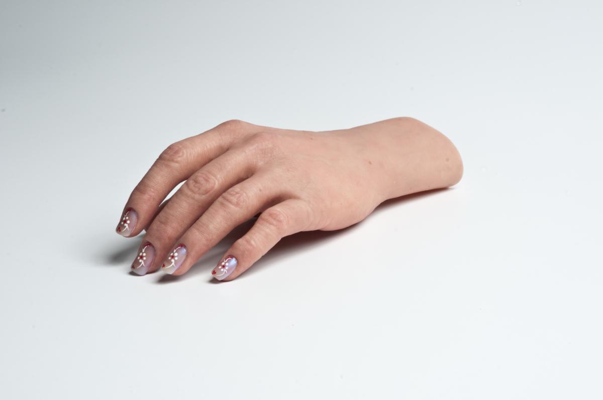Prótesis avanzadas para MANOS | P&O MG LatamPrótesis ortopédicas y cosméticas de mano