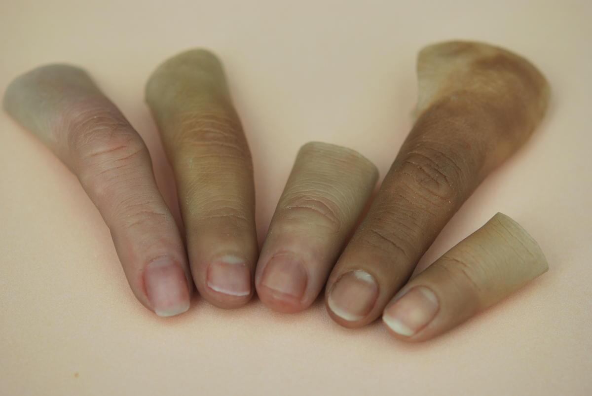 Productos * Prótesis Avanzadas * Restauración artificial de dedos amputados de las manos