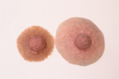 Prótesis de pezónes * MG * para mastectomía Avanzadas * post quirúrgicas